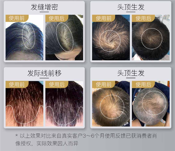 Xiaomi crowdfunds the COSBEAUTY LLLT laser hair growth cap 3