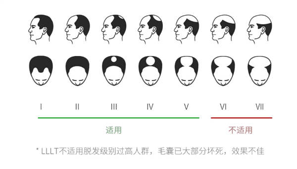 Xiaomi crowdfunds the COSBEAUTY LLLT laser hair growth cap 4